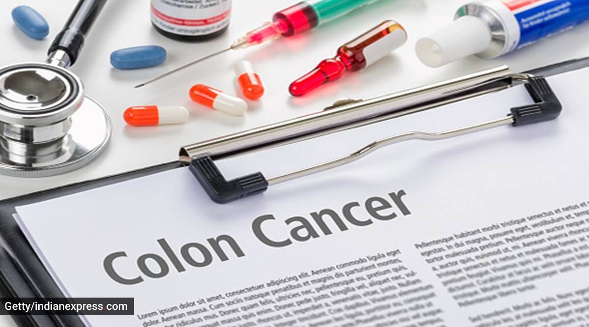 Colon cancer: When should you get yourself screened?