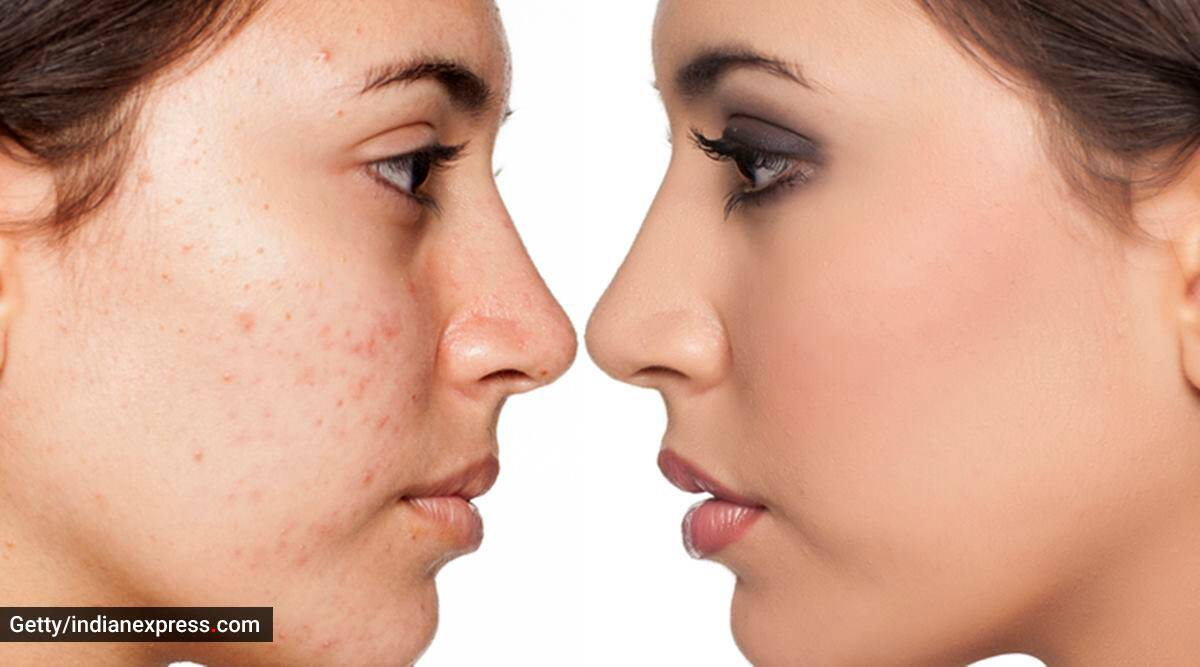 Basic skincare: Some everyday habits that can cause acne